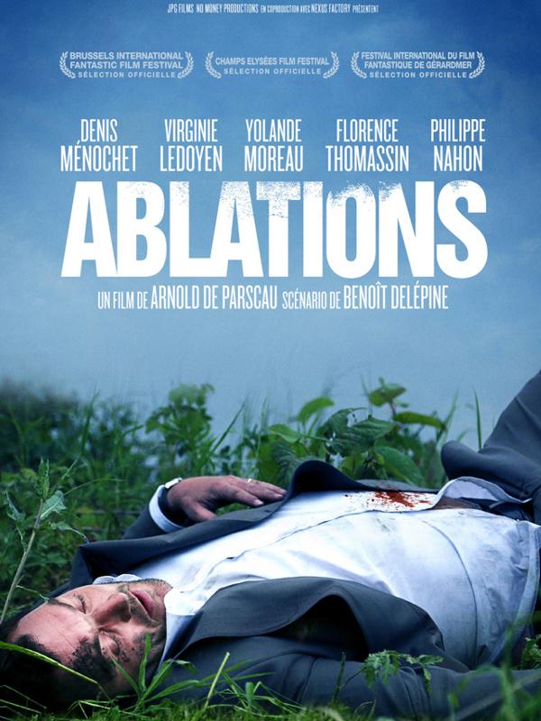 Ablations | De Parscau, Arnold (Réalisateur)