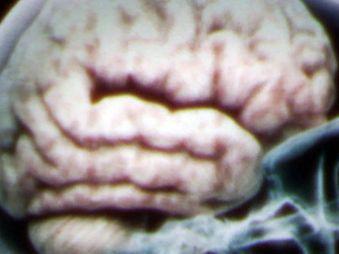 Movie pictures Le ventre, notre deuxième cerveau